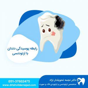 رابطه پوسیدگی دندان با ارتودنسی دکتر نجمه تحویلدارنژاد