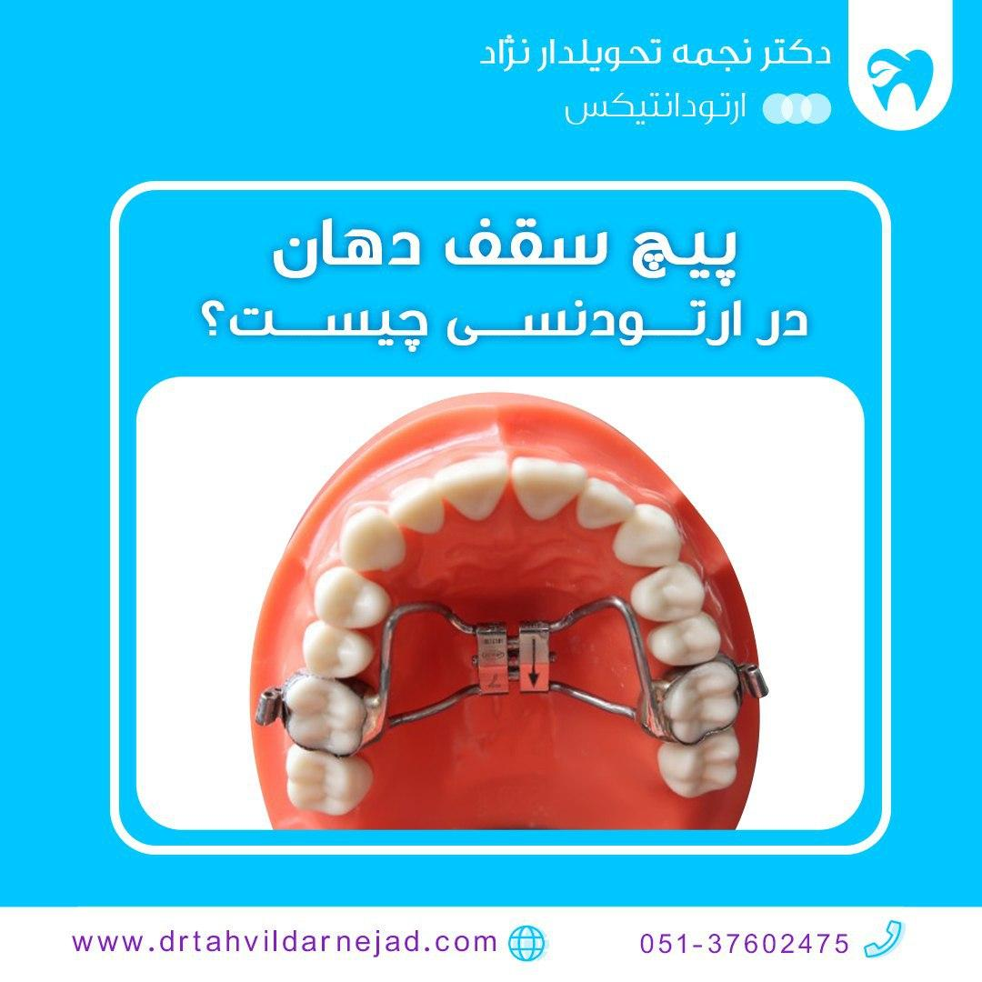 پیچ سقف دهان در ارتودنسی چیست؟