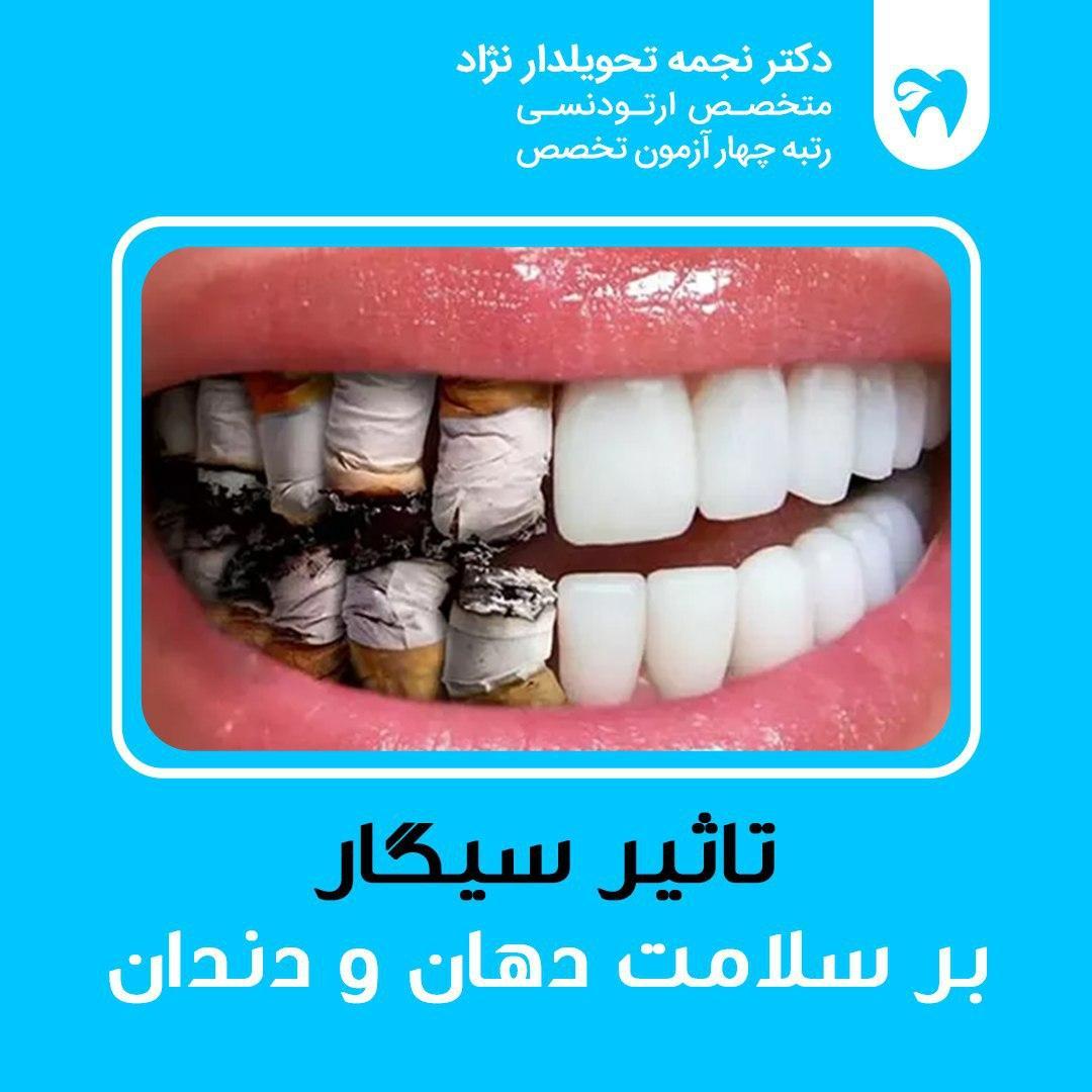 تاثیر سیگار بر سلامت دهان و دندان