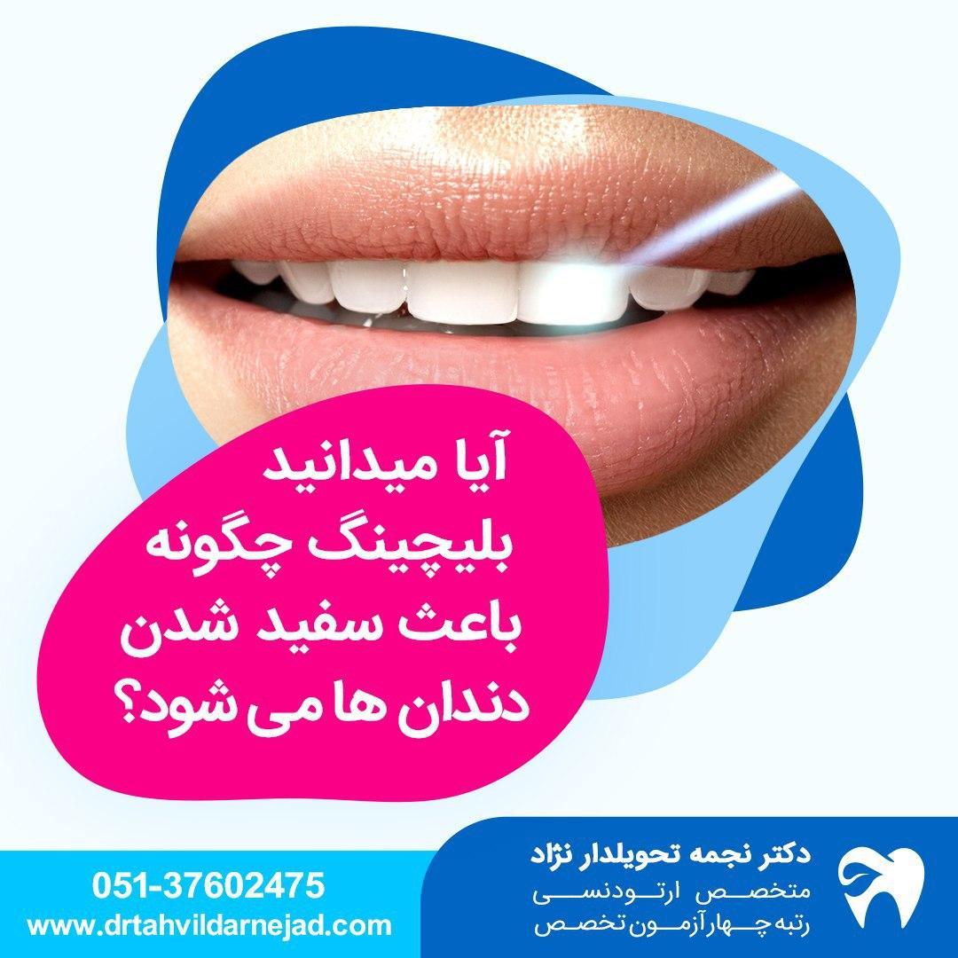 سفید کردن دندان یا بلیچینگ دندان