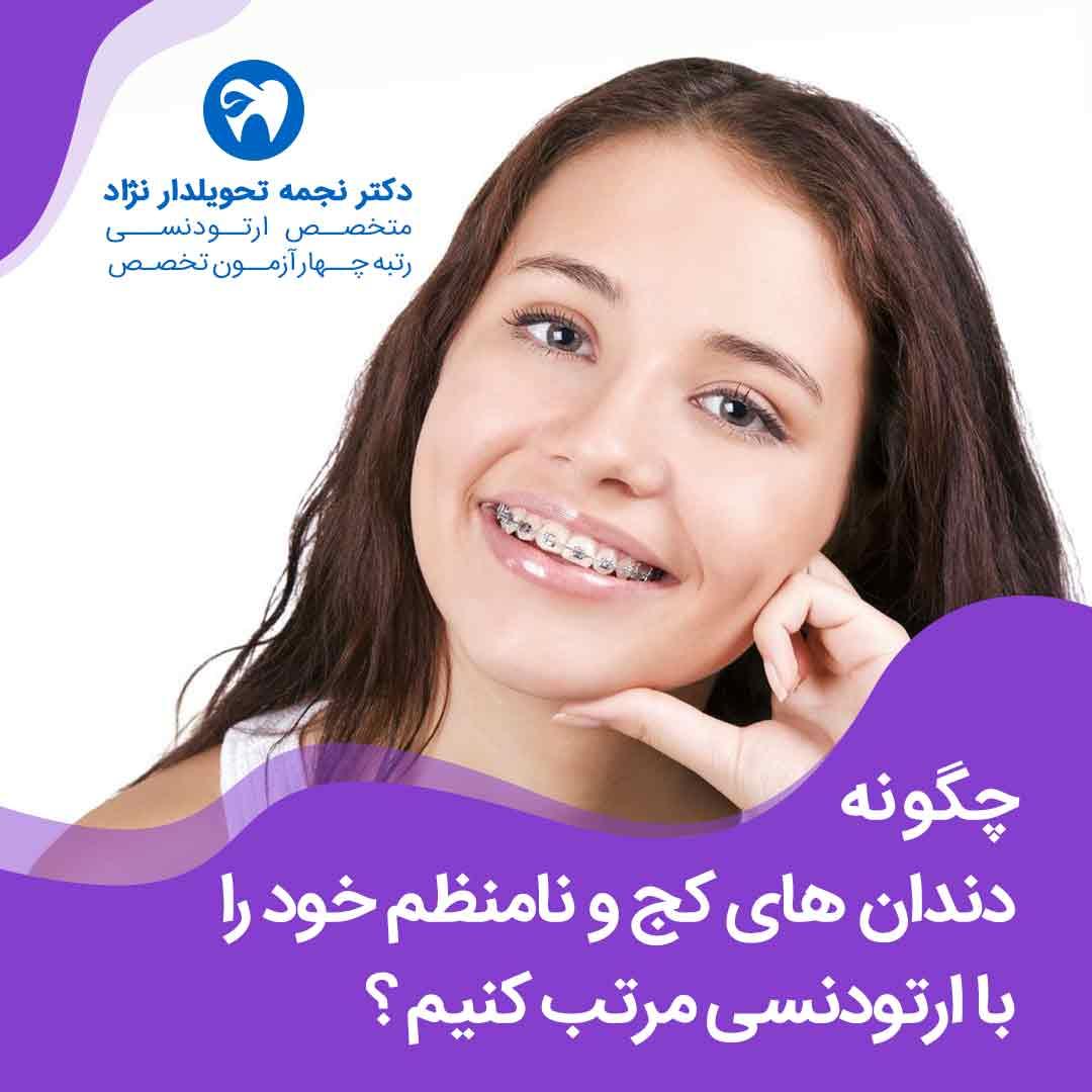 چگونه دندان های کج و نامنظم خود را با ارتودنسی مرتب کنیم ؟