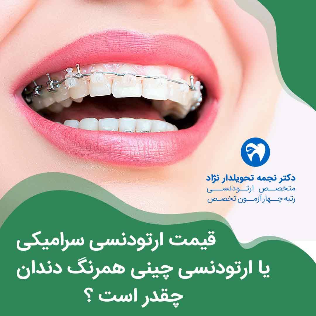 قیمت ارتودنسی سرامیکی در مشهد یا ارتودنسی چینی همرنگ دندان در مشهد