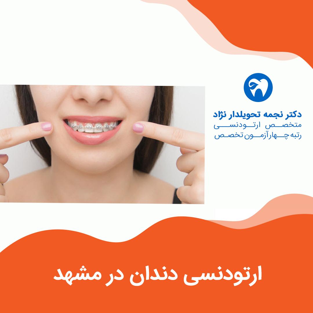 ارتودنسی دندان در مشهد