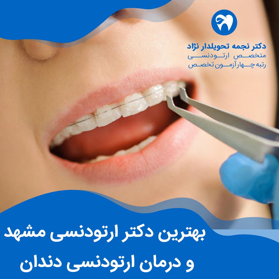 بهترین دکتر ارتودنسی مشهد و درمان ارتودنسی دندان به گفته دکتر نجمه تحویلدار نژاد متخصص ارتودنسی مشهد