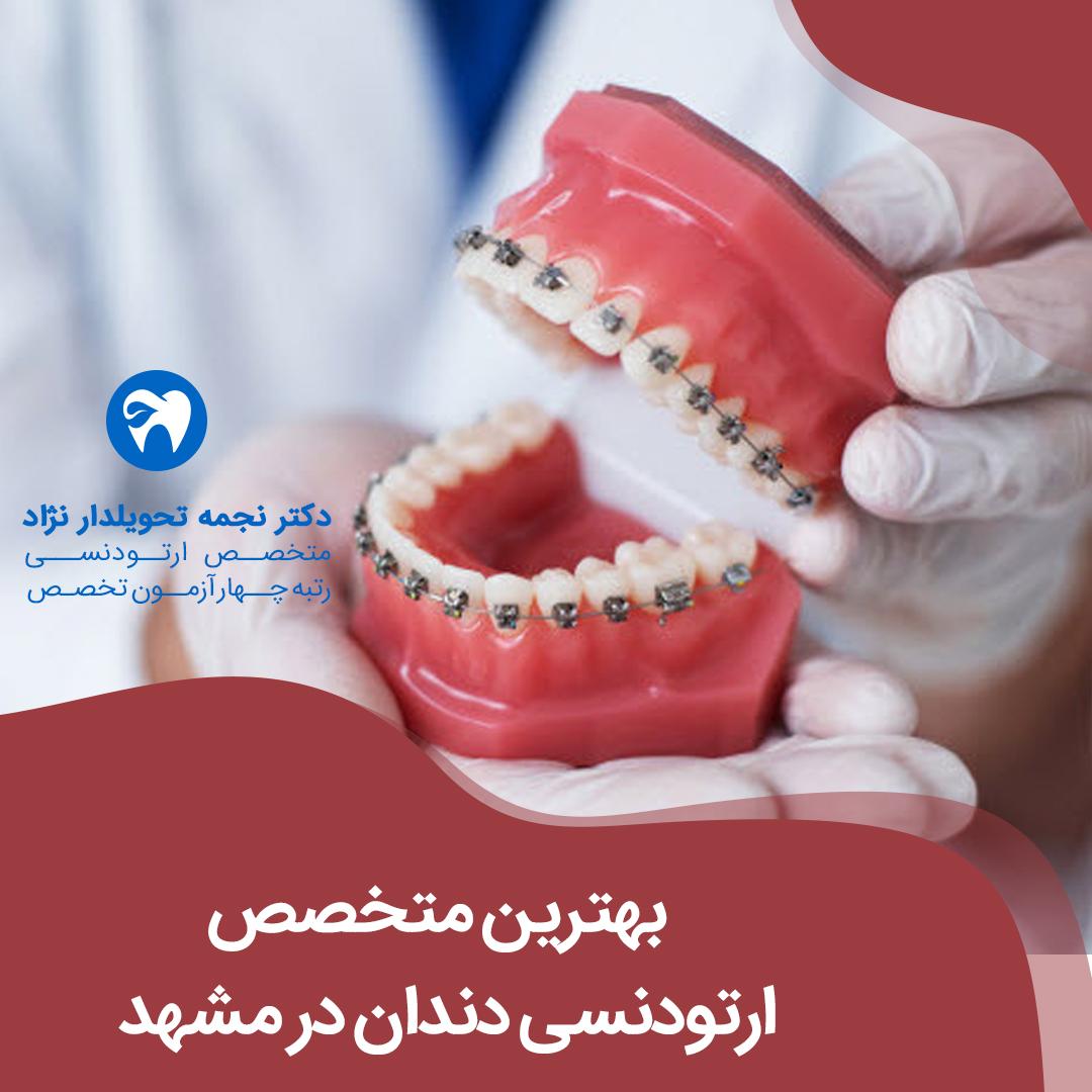 بهترین متخصص ارتودنسی دندان در مشهد دکتر نجمه تحویلدار نژاد