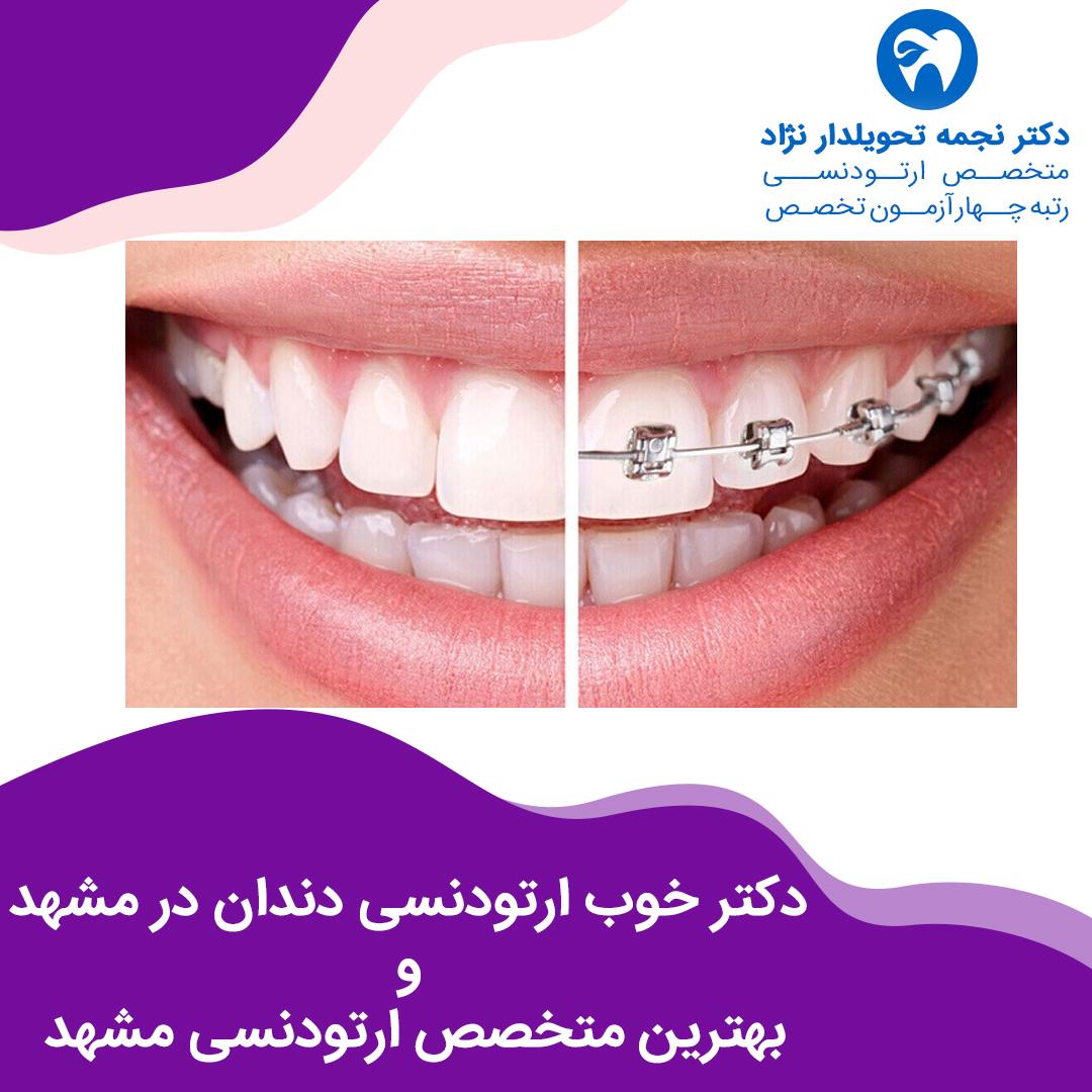 دکتر خوب ارتودنسی دندان در مشهد و بهترین متخصص ارتودنسی مشهد