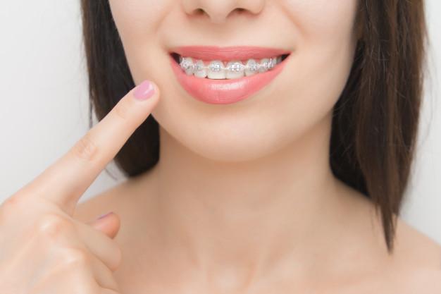 علل بروز ناهنجاری های دندانی و مال اکلوژن های فکی در کودکان به گفته دکتر نجمه تحویلدار نژاد دکتر متخصص خوب ارتودنسی در مشهد