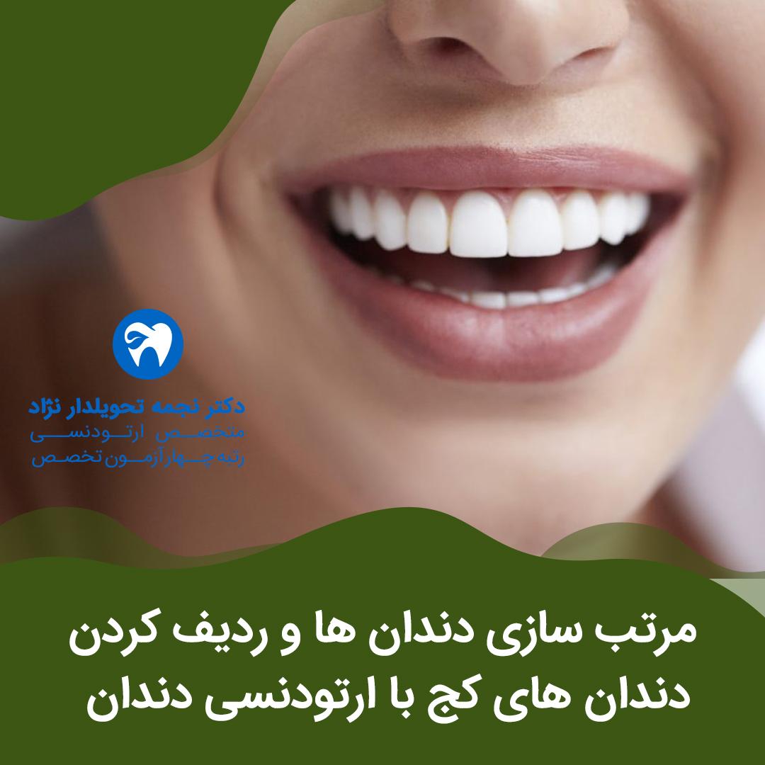 مرتب سازی دندان ها و ردیف کردن دندان های کج با ارتودنسی دندان به گفته دکتر نجمه تحویلدار نژاد بهترین دکتر متخصص ارتودنسی دندان در مشهد و در استان خراسان رضوی