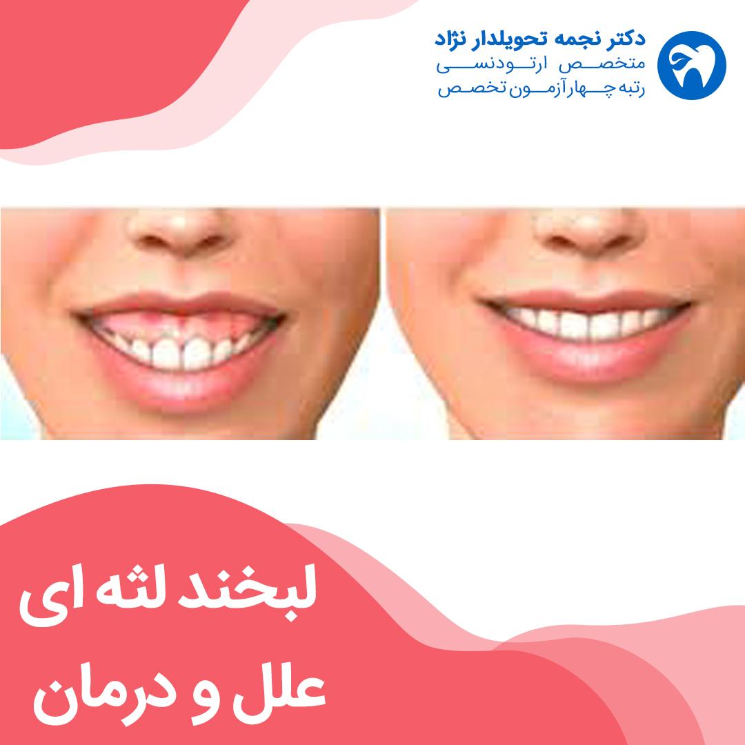 لبخند لثه ای، علل و درمان