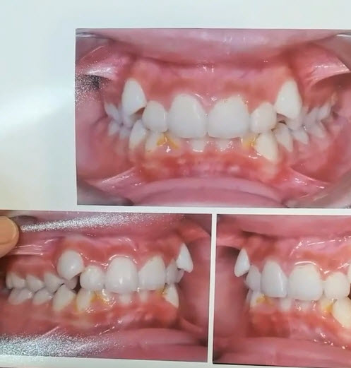 قبل و بعد از درمان