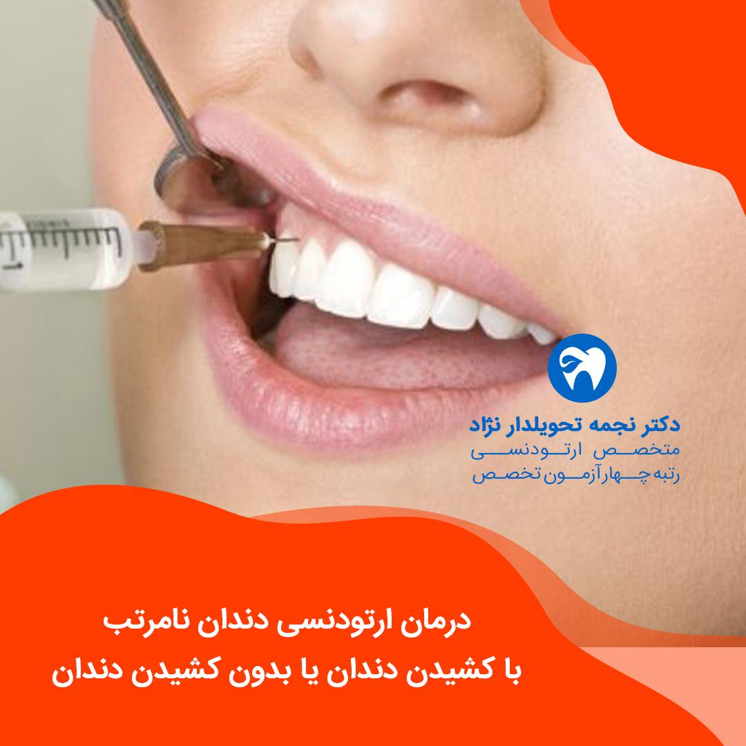 درمان ارتودنسی دندان نامرتب با کشیدن دندان یا بدون کشیدن دندان