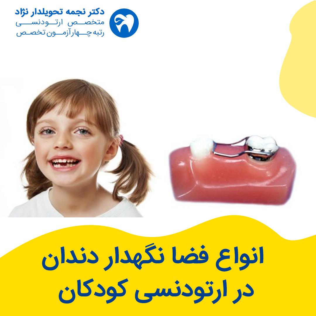 انواع فضا نگهدار دندان در ارتودنسی کودکان